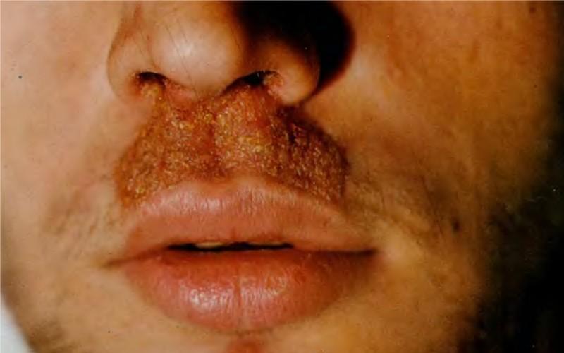 Сикоз под носом (над губой) у мужчин