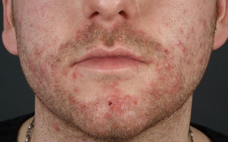 Сикоз – гнойное заболевание кожи