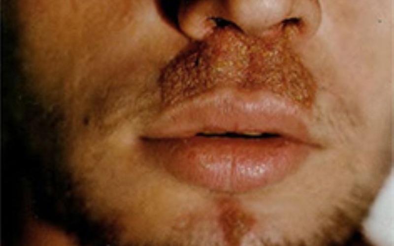 Внешний вид сикоза под носом у мужчины