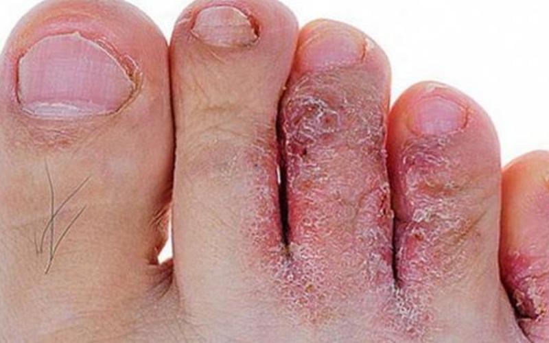 Грибок стопы и ногтевых пластин, шелучение, ранки