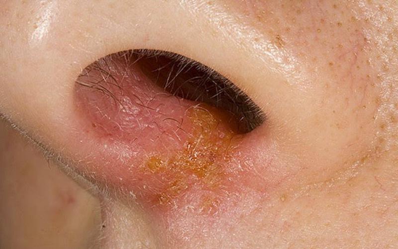 Стрептодермия в области носа
